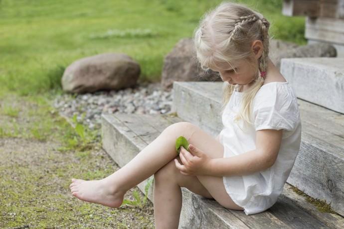 Лечение кожи можно осуществлять и обычным прикладыванием листьев золотушника к пораженным частям