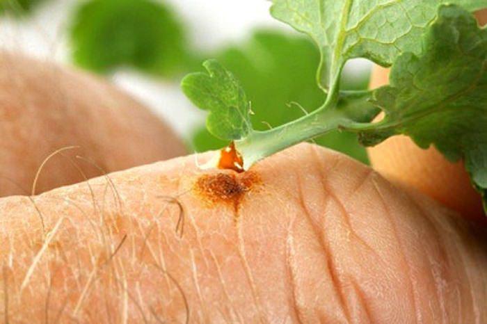 Чистотел обладает прекрасным ранозаживляющим и бактерицидным действием, поэтому его применяют при ссадинах